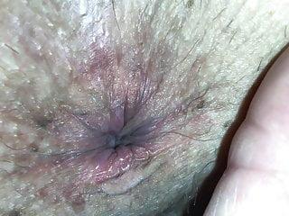 Up close asshole