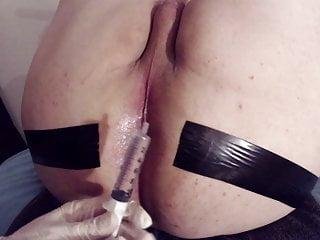 Dr Peeemeee & Giorgio: spank enema